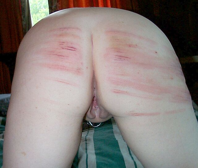 The bruised butts sex pictures